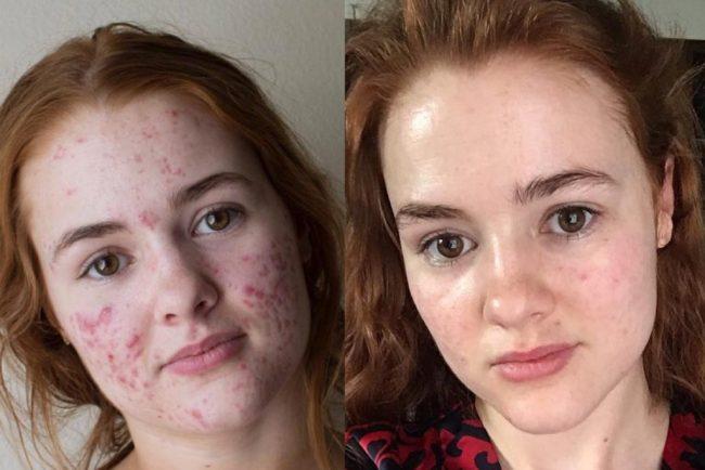 Salicylic Acid Face Washes