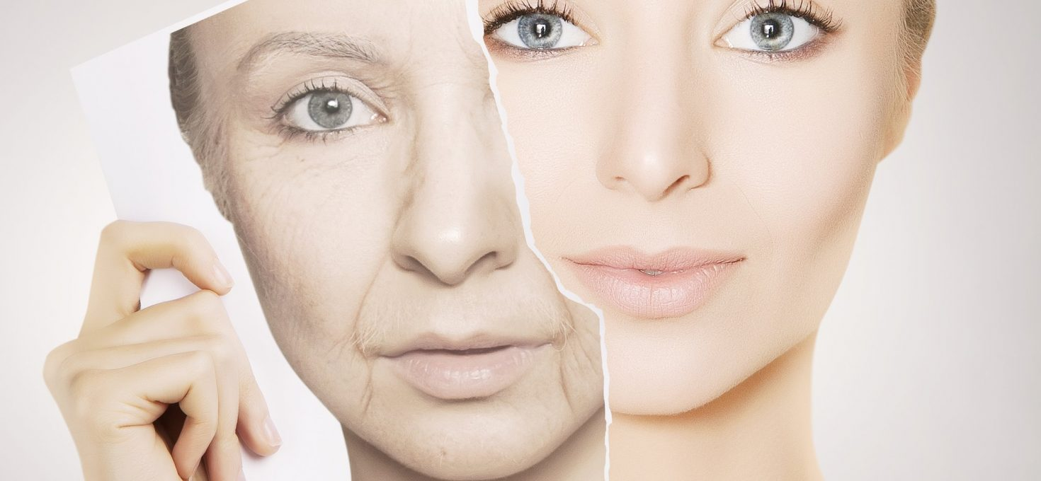 Get Back Younger Skin with Thermage treatment