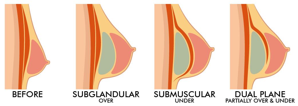 Breast Augmentation incision